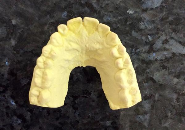 ステップⅡ 型取りしたものに石膏を流し込むと、お口のなかのコピーができあがります。