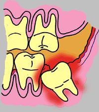 萌出性または智歯周囲炎