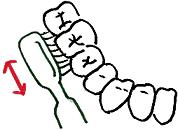 1.歯の外側