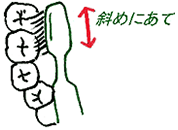 2.歯の内側