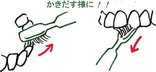 3.歯の裏側