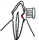 歯ブラシの仕方
