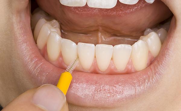 6:歯磨きといっても多種多様! 上手にロ腔ケアグッズを利用しよう