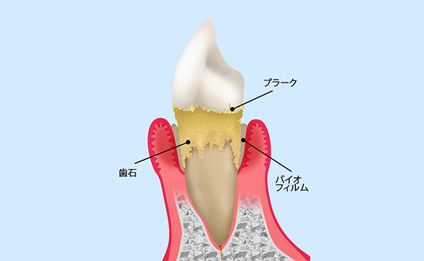 なぜ歯周病になるのでしょうか