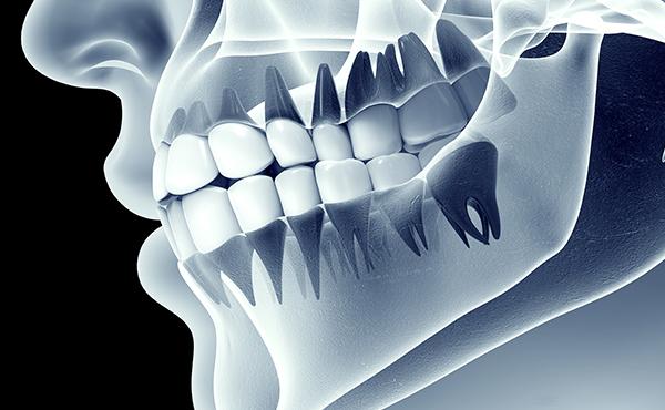 丈夫なあごや、歯肉をつくる