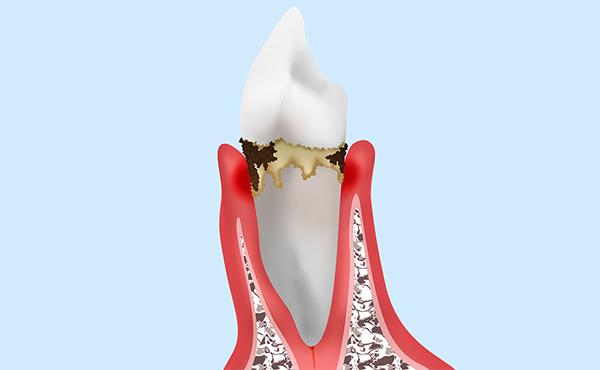 歯肉炎について教えてください。