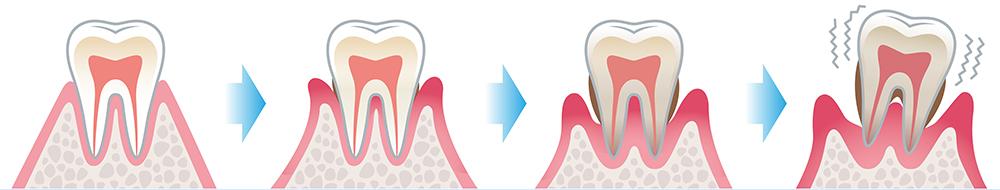 歯周病(歯槽膿漏〕はどうしてこわいのですか。
