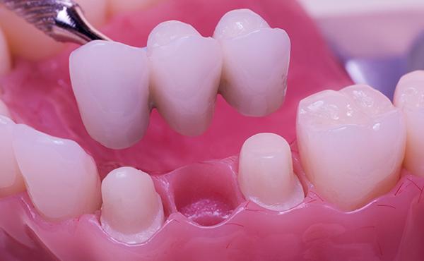 入れ歯の材質、デザインや治療技術も進歩していると思います。最近の入れ歯の特色はどんな点ですか?