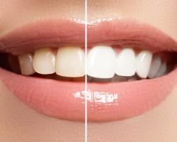 歯のホワイトニングをしたい その前に知っておきたいこと