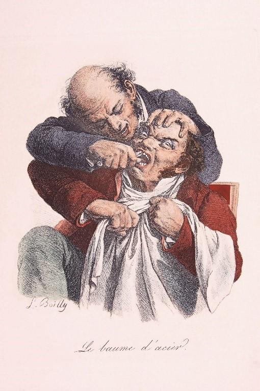 床屋外科医による抜歯