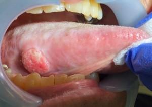 舌がんの症例画像