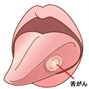 口腔がん-舌がん