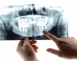 歯科でレントゲン撮影をするということ