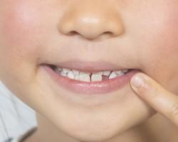【10人に1人】知っていますか?子どもに足りない歯があるとい...