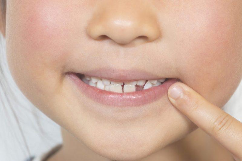 【10人に1人】知っていますか?子どもに足りない歯があるということ