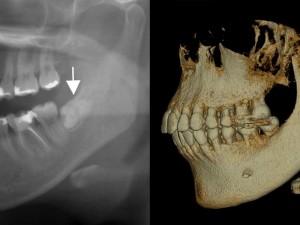 X線画像診査からわかる親知らずの位置
