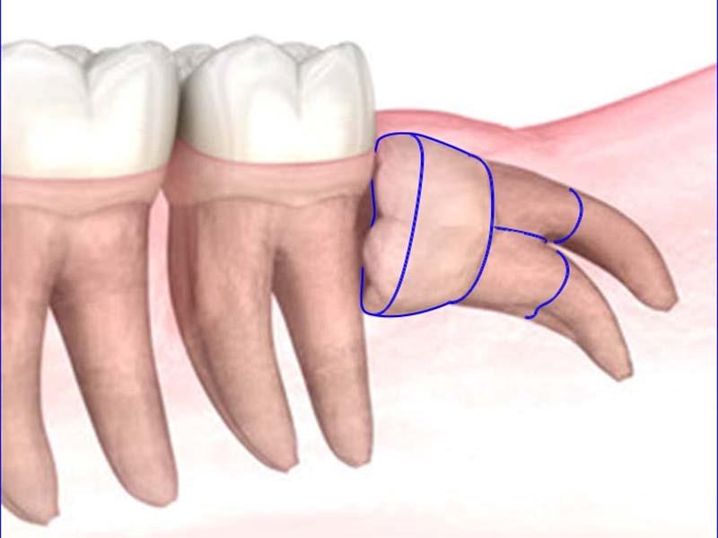 智歯の分割摘出(親知らずの抜歯)