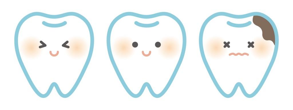 「シーラント」でむし歯予防!