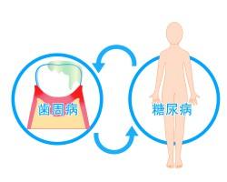 お口と全身の関係 歯周病は糖尿病の第6の合併症!