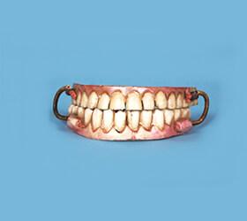 西洋の入れ歯の材料